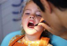 صورة طرق بسيطة للتغلب على خوف الأطفال من طبيب الأسنان