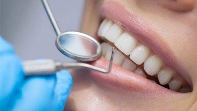 صورة كيف تتخلص من ألم ومشاكل الأسنان؟